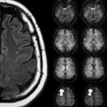 Brain Tumor Diagnosis